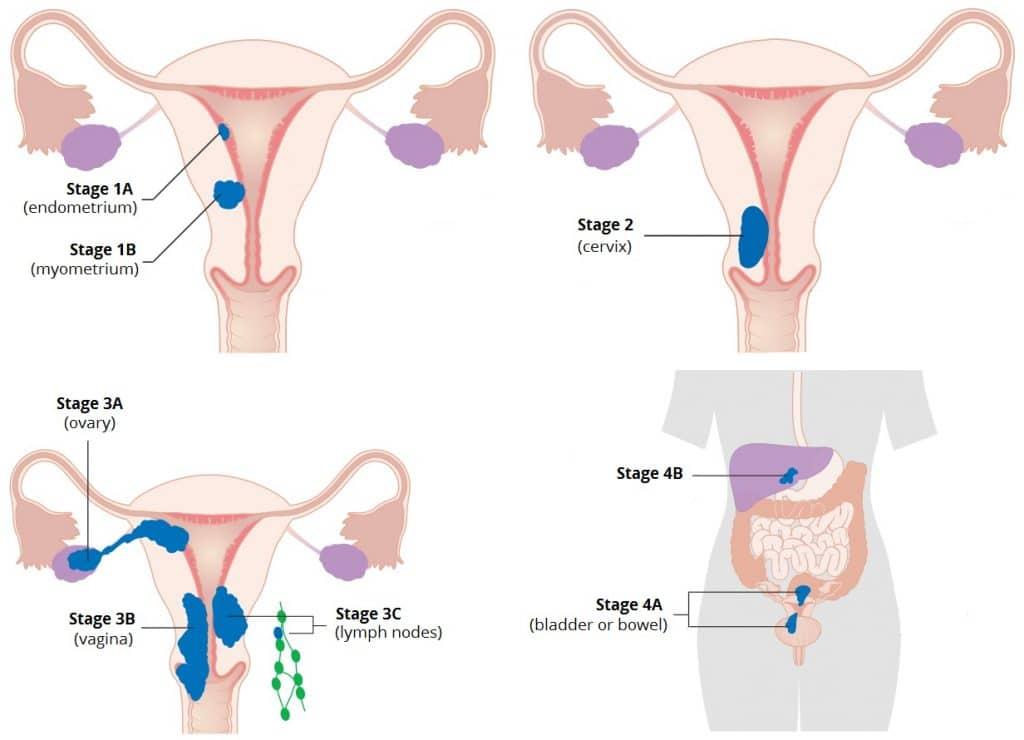 uterine cancer found after hysterectomy