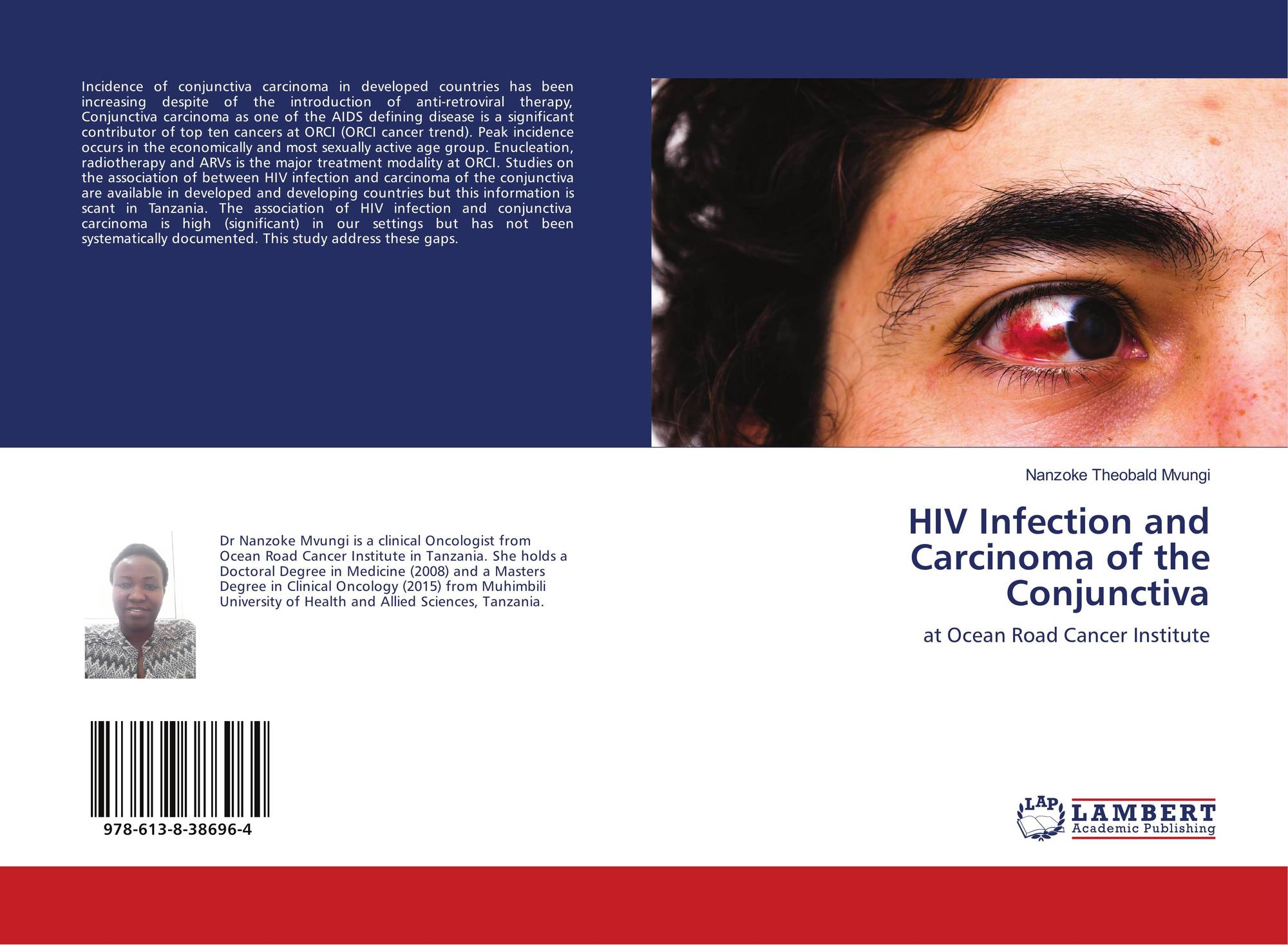 hiv and eye cancer