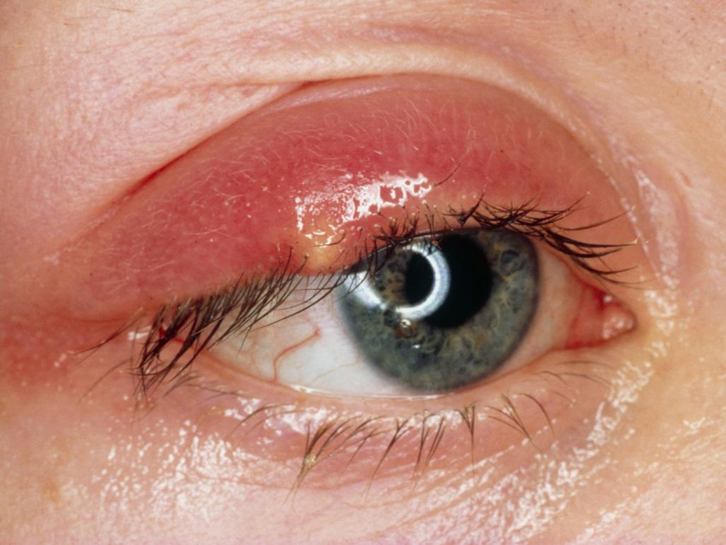 wart on babys eyelid zodia cancerului de citit