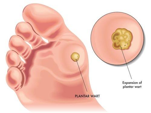 papilloma virus e cure naturali