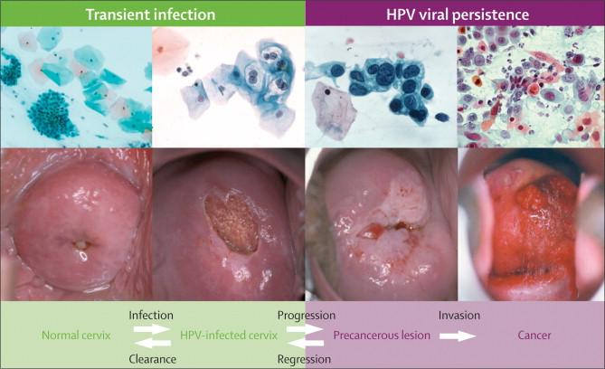 Corelația dintre cancerul de col uterin și virusul papilomului uman