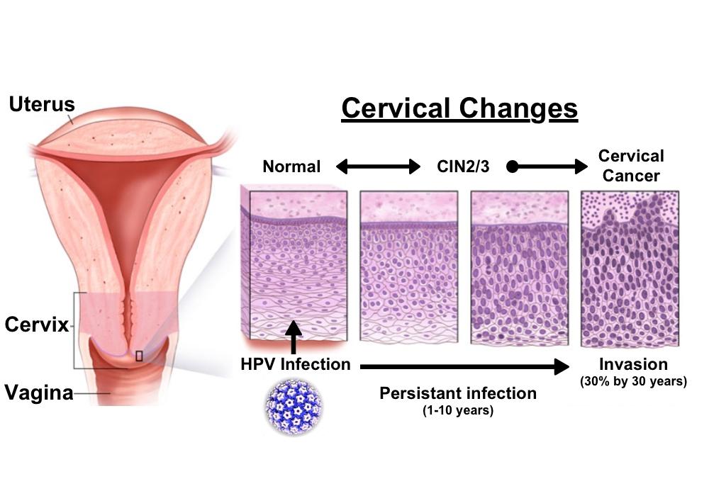 Prevenţia cancerului cervical prin vaccinare în 2019