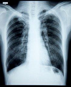 Ce este cancerul pulmonar