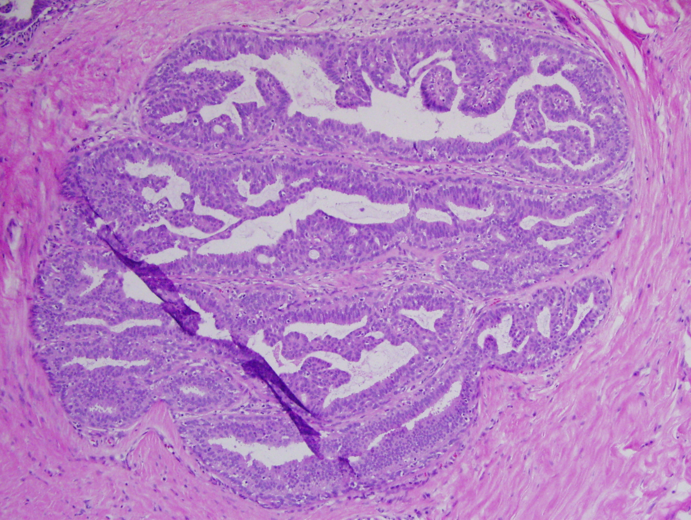 laryngeal papillomatosis pathology
