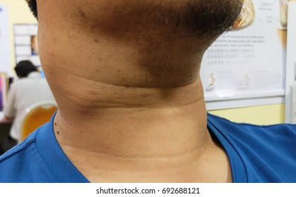 papillary thyroid cancer in lymph nodes