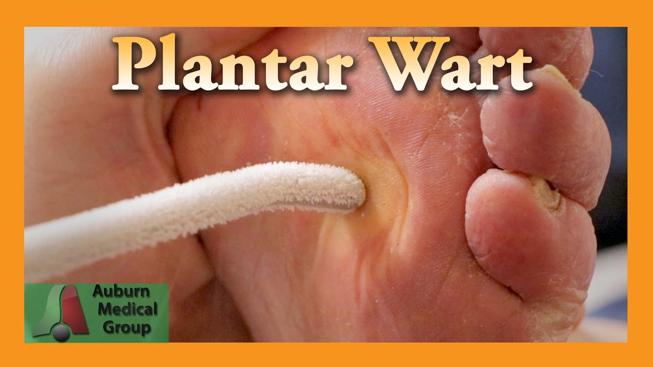 Plantar Warts & How To Avoid And To Treat Them This Summer | Warts, Summer, Summer treats