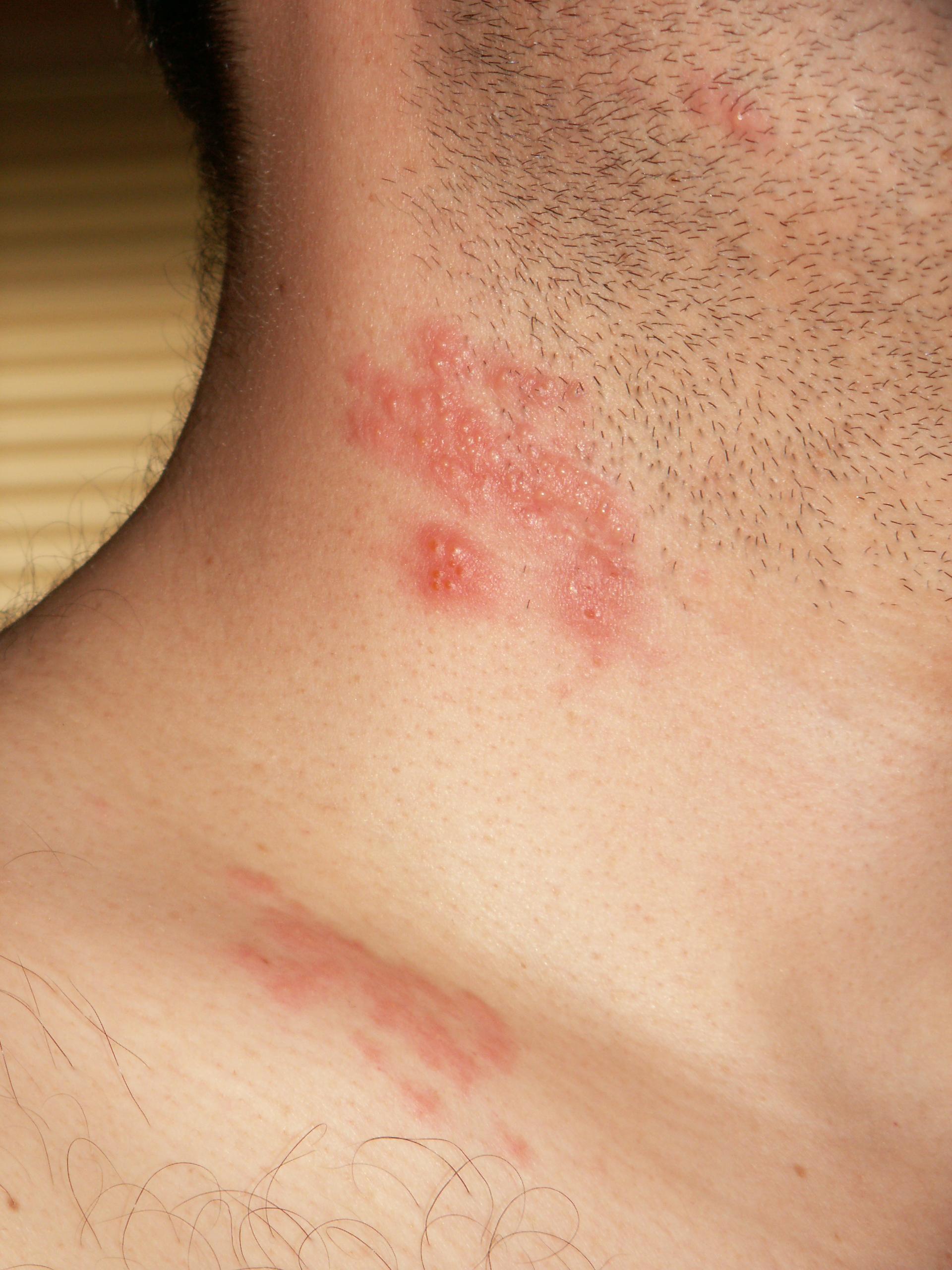 Cât de mult profită industria farma de pe urma spaimei tale de herpes - VICE