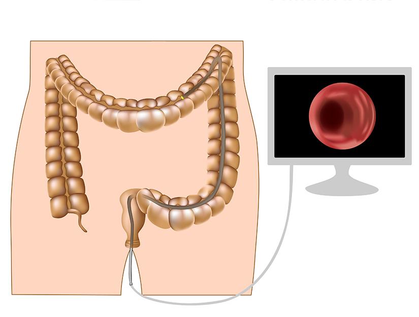 kozni paraziti kod ljudi papilloma on eyelid cpt code