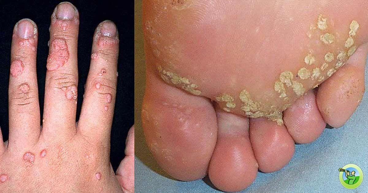 human papillomavirus feet