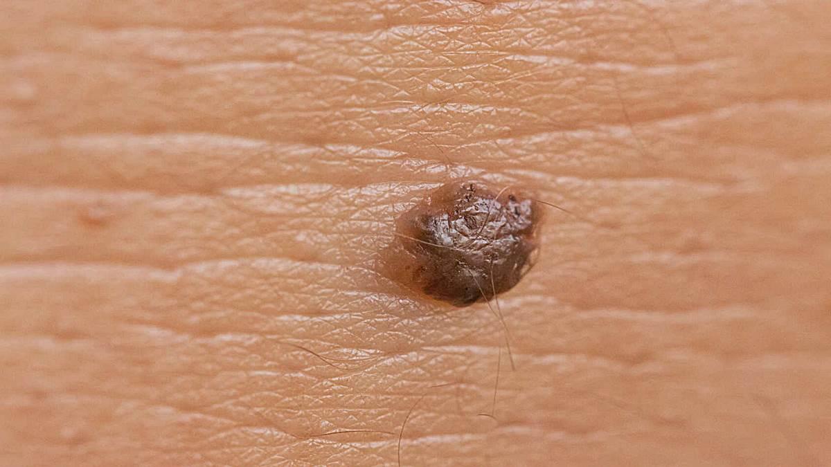 papilloma virus alto e basso rischio oxiuros cdc