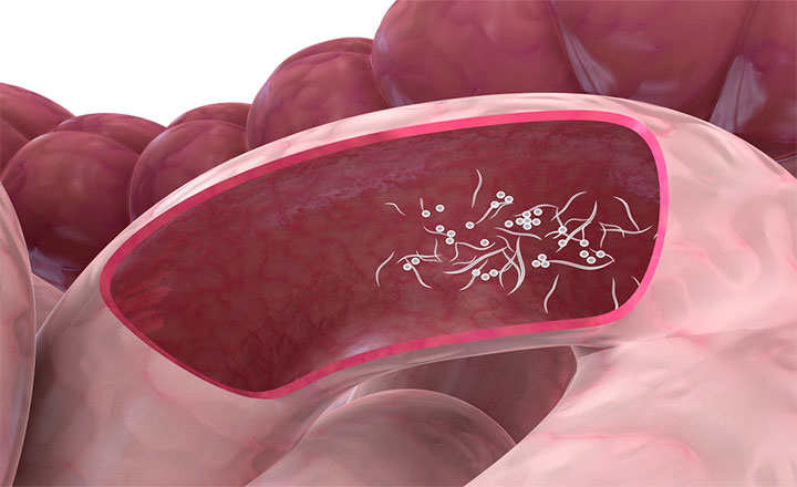 cancerul gastrointestinal simptome sarcoma cancer de huesos