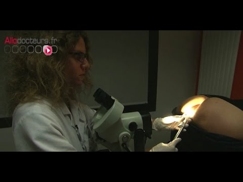 papillomavirus homme operation paraziti mancarime piele