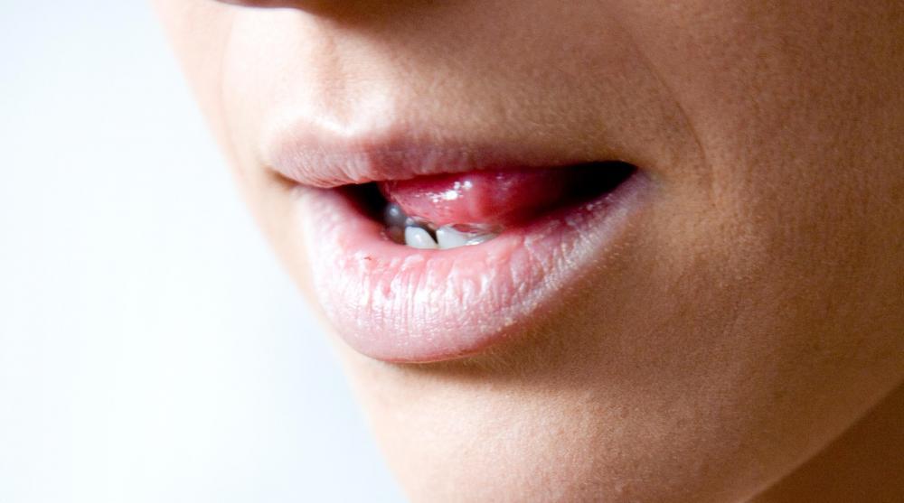 hpv transmission from saliva che cos e il papilloma all occhio