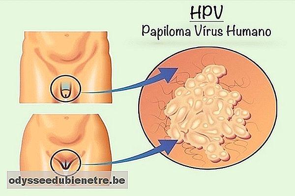 hpv e sintomi zodia cancerului rezumat brainly