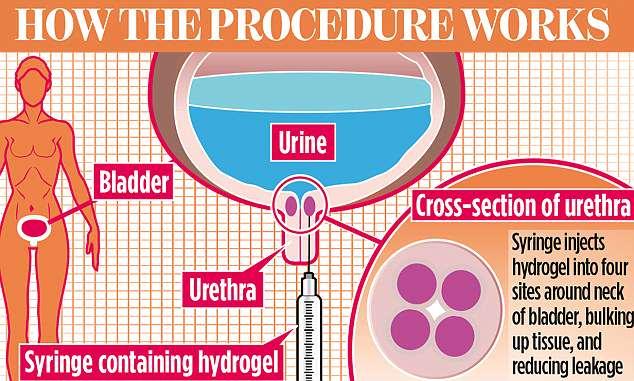 Reducerea in volum a prostatei