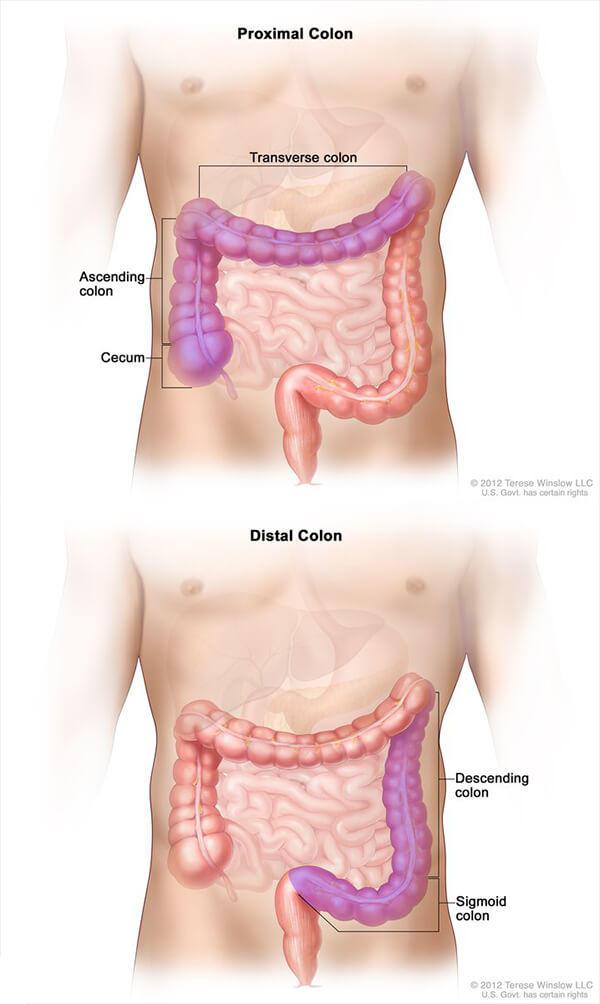 cancer rectal metastaze