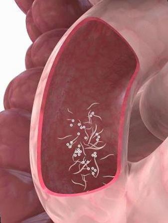 sintomas en oxiuros tipuri de paraziti intestinali la copii