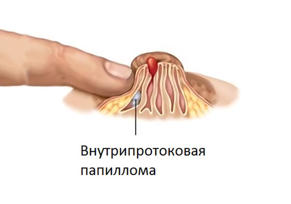 papillomavirus in gura cancer plamani stadiul 4