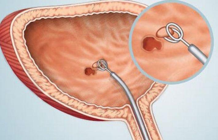 Cancerul vezicii urinare - simptome și tratament