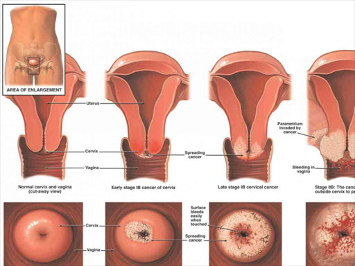 Hpv Infections - Descarca