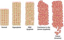 virus papiloma humano q significa