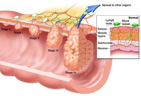 cancerul uterin femei squamous papilloma palate icd 10