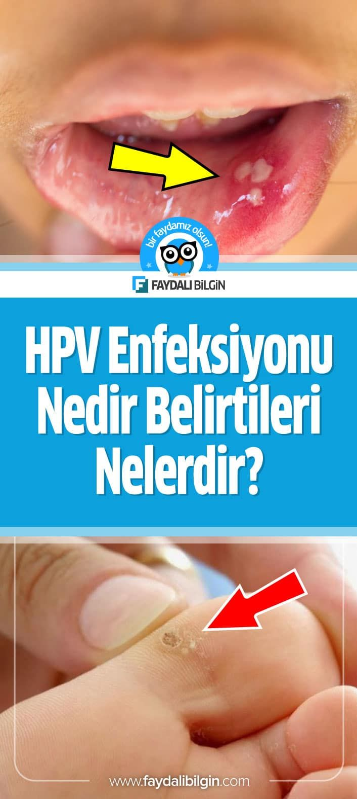 hpv tedavisi nedir