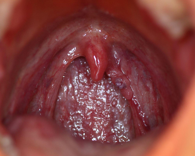 Virusul chlamydia Pagina 7