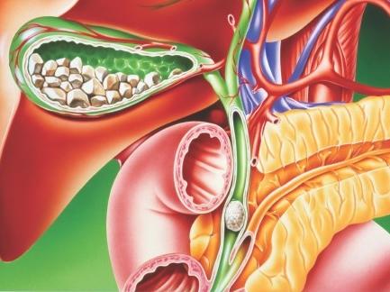 detoxifierea ficatului cu sare amara