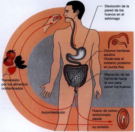 que enfermedad es oxiuriasis