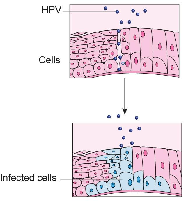 hpv squamous epithelial cells squamous papilloma uvula pathology