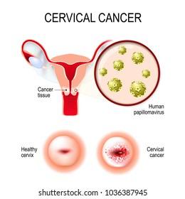 cervical cancer how much bleeding