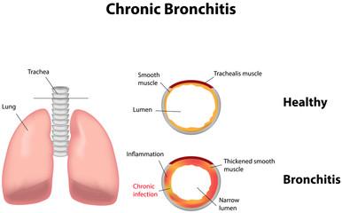 Diagnosticul şi tratamentul în bronşita acută