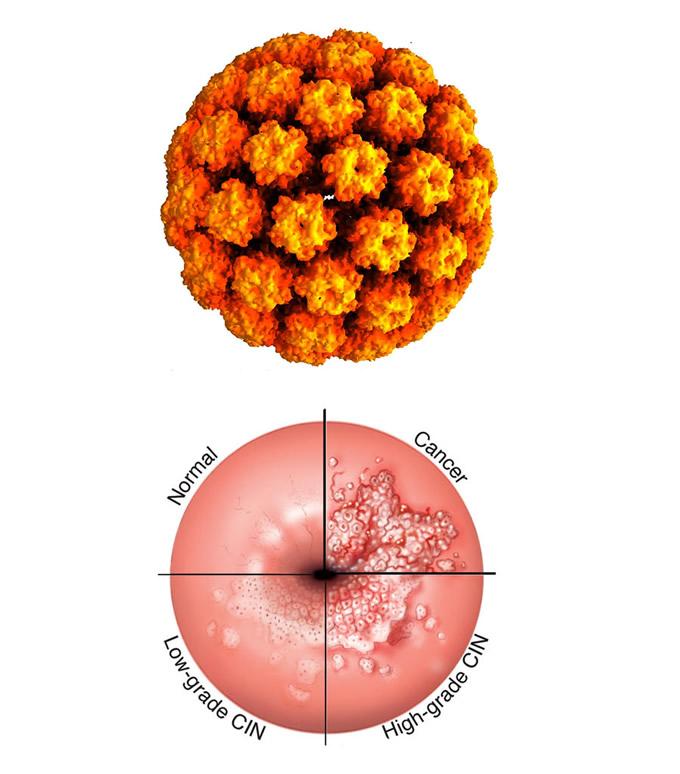 human papillomavirus symptoms female human papillomavirus vaccine cancer treatment
