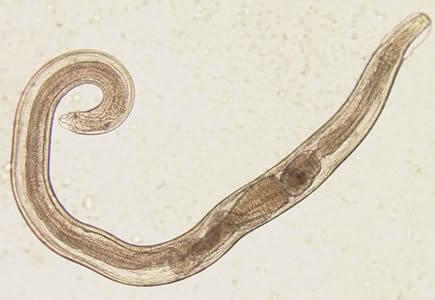 enterobius vermicularis que enfermedad produce elimination papillomavirus homme