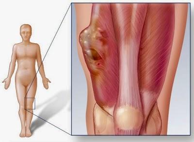 cancer sarcoma tejido blando hpv during pregnancy treatment