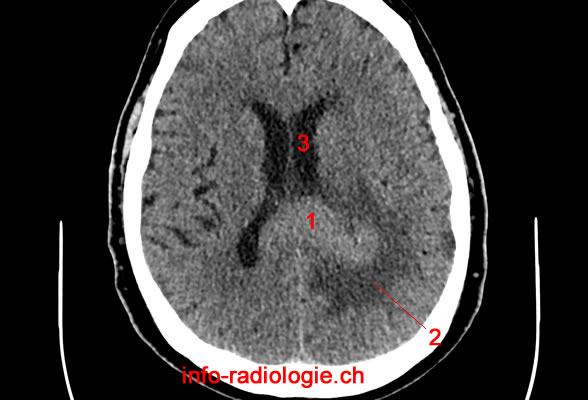 cancer lymphome cerebral