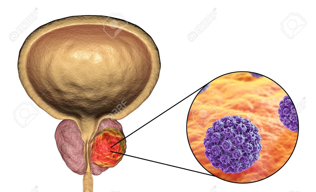 is papilloma tumor