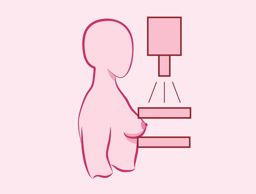 Cancerul mamar statistica