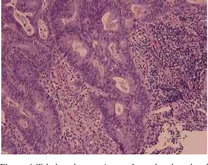 gastric cancer pathology