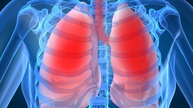 chimioterapia pt cancerul pulmonar cu celule mici metastatic cancer renal gpc rr