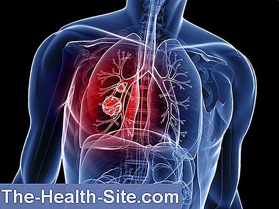 cancerul pulmonar contagios papilloma umano cura