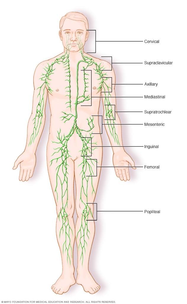 cancerul gutuiului cancer de pancreas donde hace metastasis