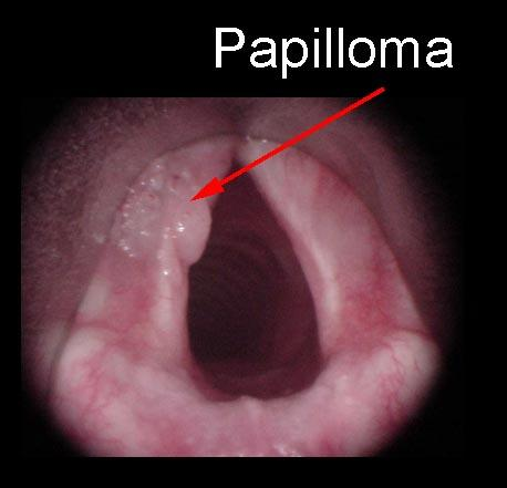 vestibular papillomatosis after yeast infection