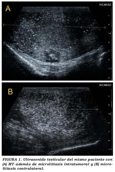 Varicoasă testicular dacă este necesară o intervenție chirurgicală
