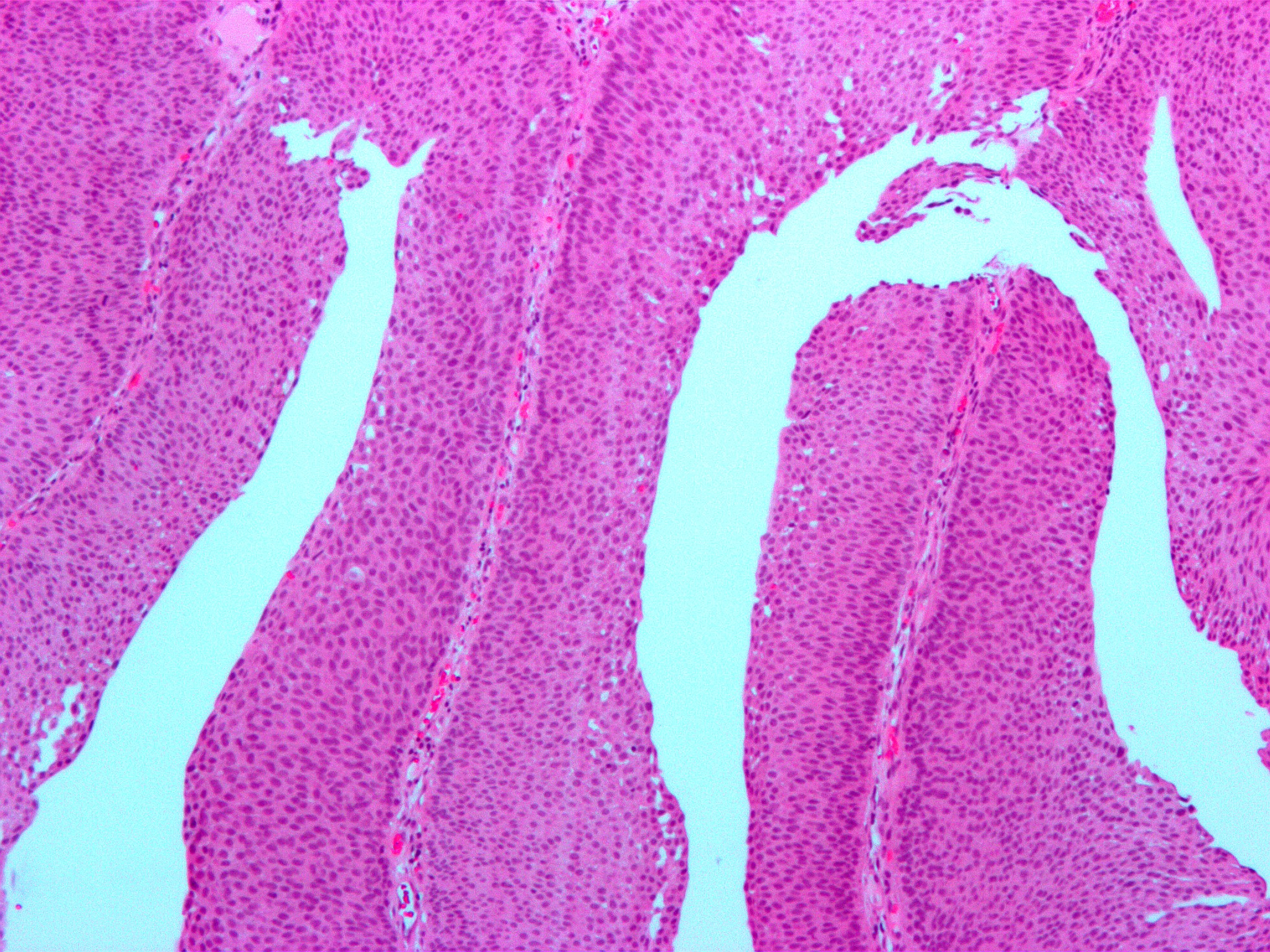 Tumorile vezicale 2011