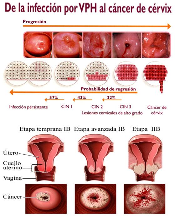vph cancer cuello uterino sintomas virus del papiloma humano en hombres como se contagia