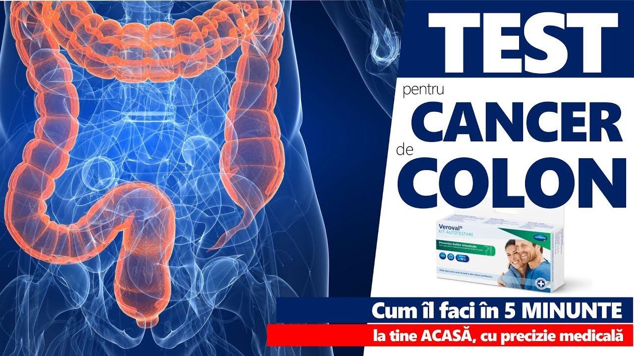 simptome cancerul de colon parazita ellen gyógynövény