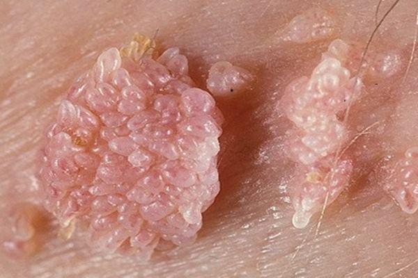 cara menghilangkan penyakit hpv
