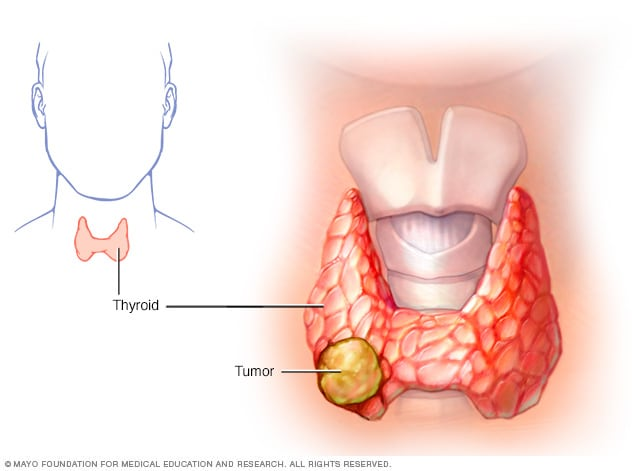 papillary thyroid cancer left untreated hpv virus and chlamydia